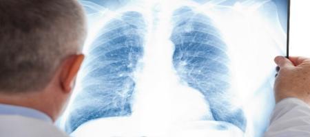 کروناویروس به جز ریهها کدام اندامهای بدن را درگیر میکند؟