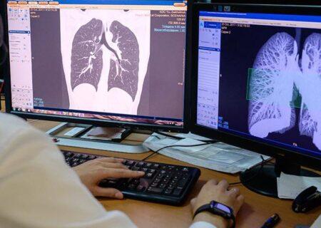 ذاتالریهی ویروسی/در ریه افراد کرونایی چه اتفاقاتی میافتد؟