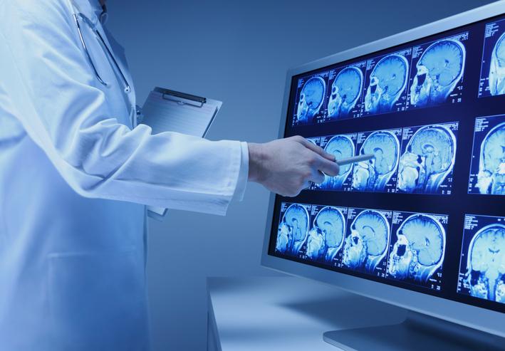 چند مورد از علائم تومور مغزی که نباید نادیده گرفت