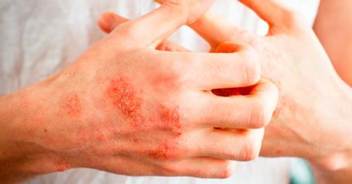 مشکلات پوستی در بهار