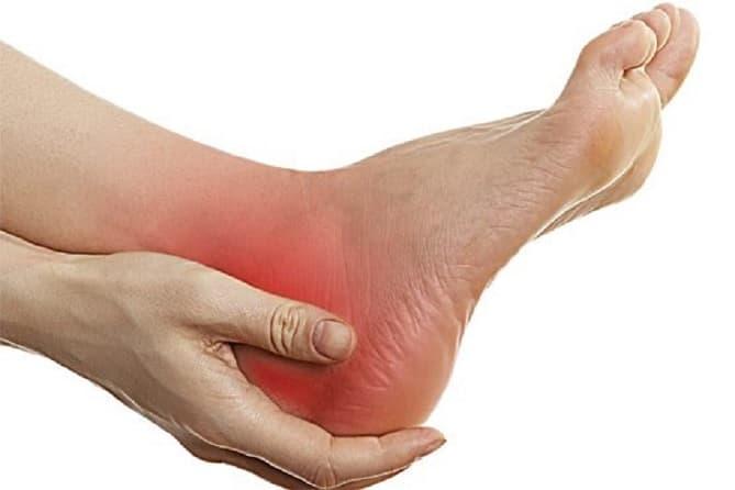خار پاشنه/علائم این بیماری که مانع راه رفتنتان می شود