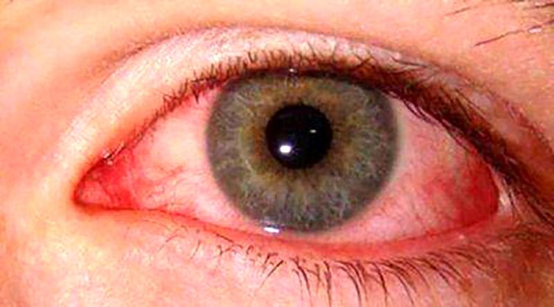 تهدید سلامت چشم ها در قرنطینه کرونا