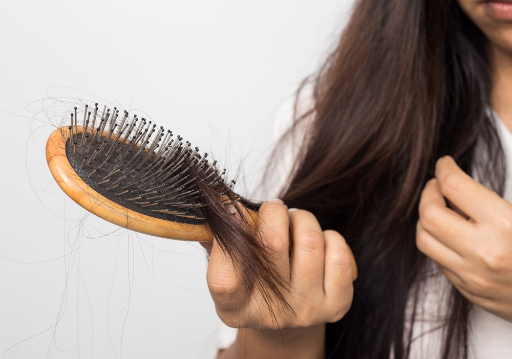 ریزش شدید مو ها
