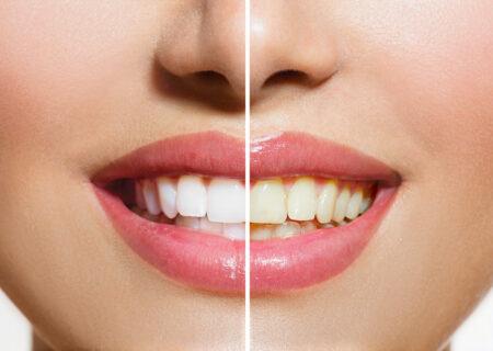علت زردی دندان و تغییر رنگ آن