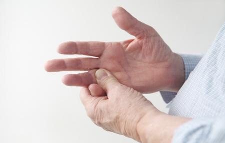 علت های گوناگون درد کف دست