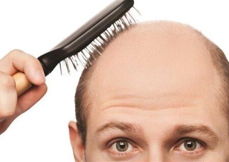 بیوتین و رشد مو/درباره تاثیر بیوتین بر رشد موی مردان بیشتر بدانیم