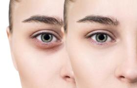 علت سیاهی زیر چشم