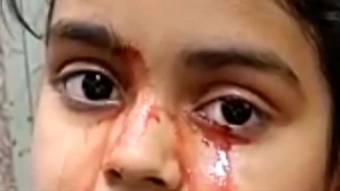 دختری ۱۱ ساله به جای اشک خون گریه می کند + عکس