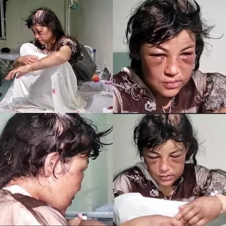عکس هولناک / شکنجه وحشیانه زلیخای ۱۶ ساله توسط داماد ۴۳ ساله