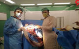 خارج کردن توده مویی از شکم پسر ۱۳ ساله بجنوردی در بیمارستان ساری +عکس