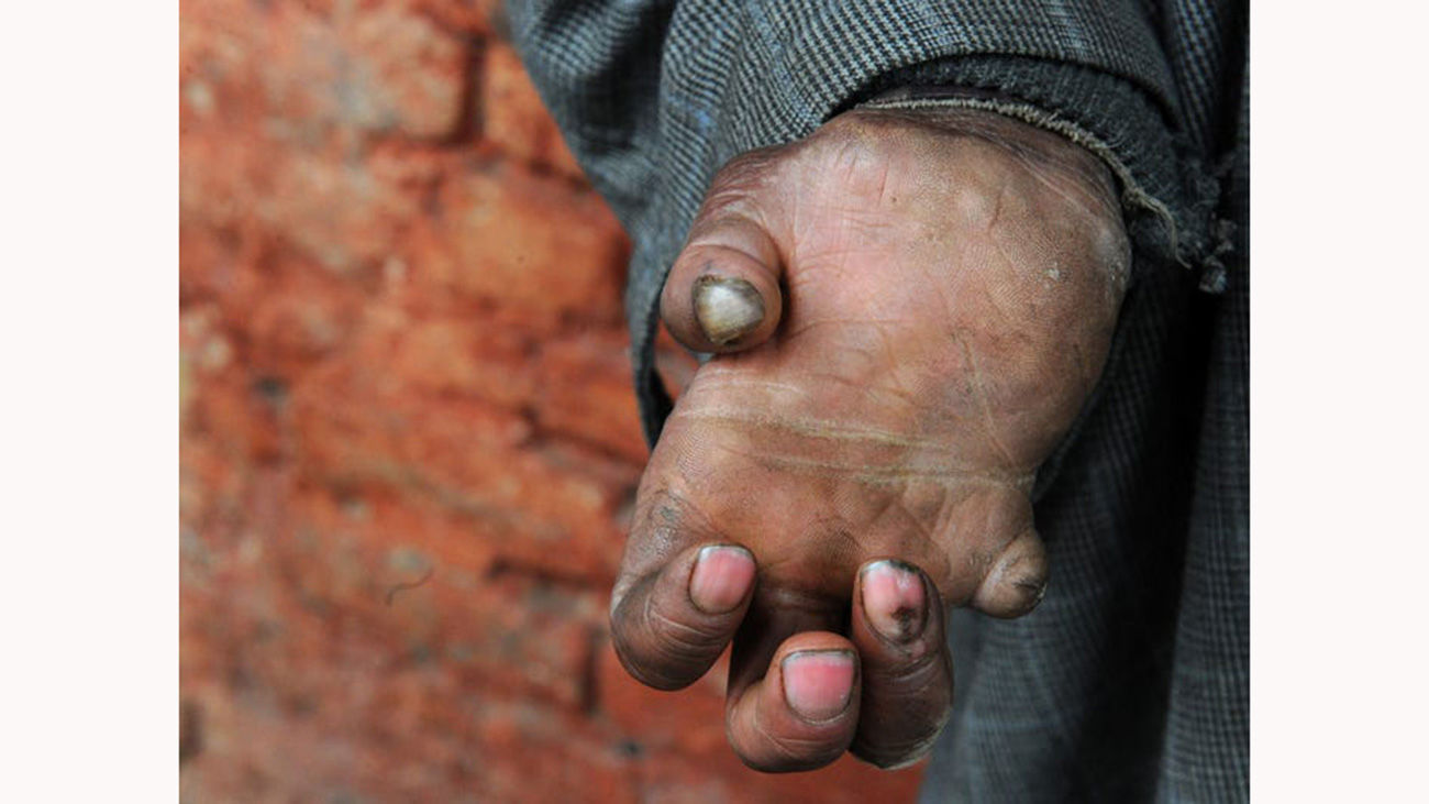 طاعون خیارکی چیست و آیا در ایران شیوع پیدا کرده است؟! + عکس