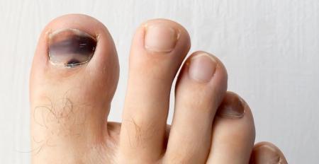 چرا ناخن پا سیاه می شود؟