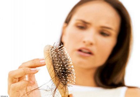 ریزش مو بعد از کرونا