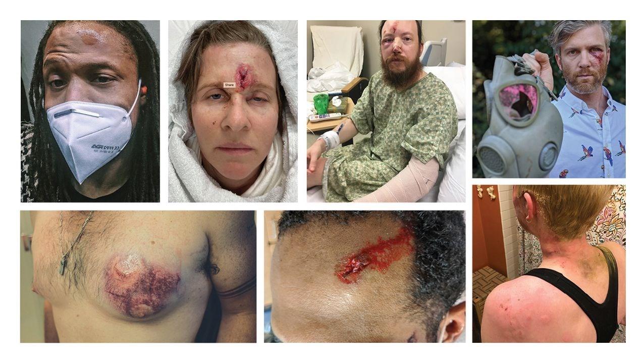 خشونت بی حدومرز پلیس آمریکا در سرکوب شدید معترضان پورتلندی +عکس