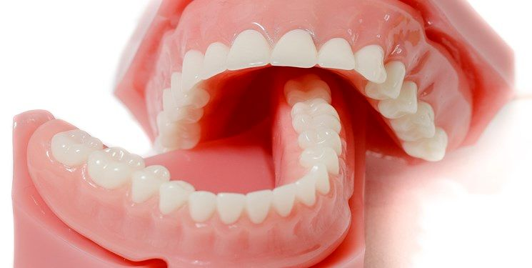 خشکی دهان/ دلیل پنهان پوسیدگی دندان