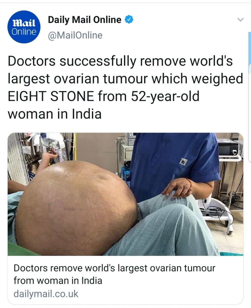 عمل جراحی روی تومور ۵۰ کیلویی یک زن! + عکس