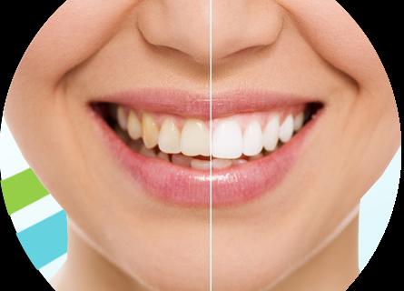 داشتن دندانهای سفید با ۱۰ روش طلایی