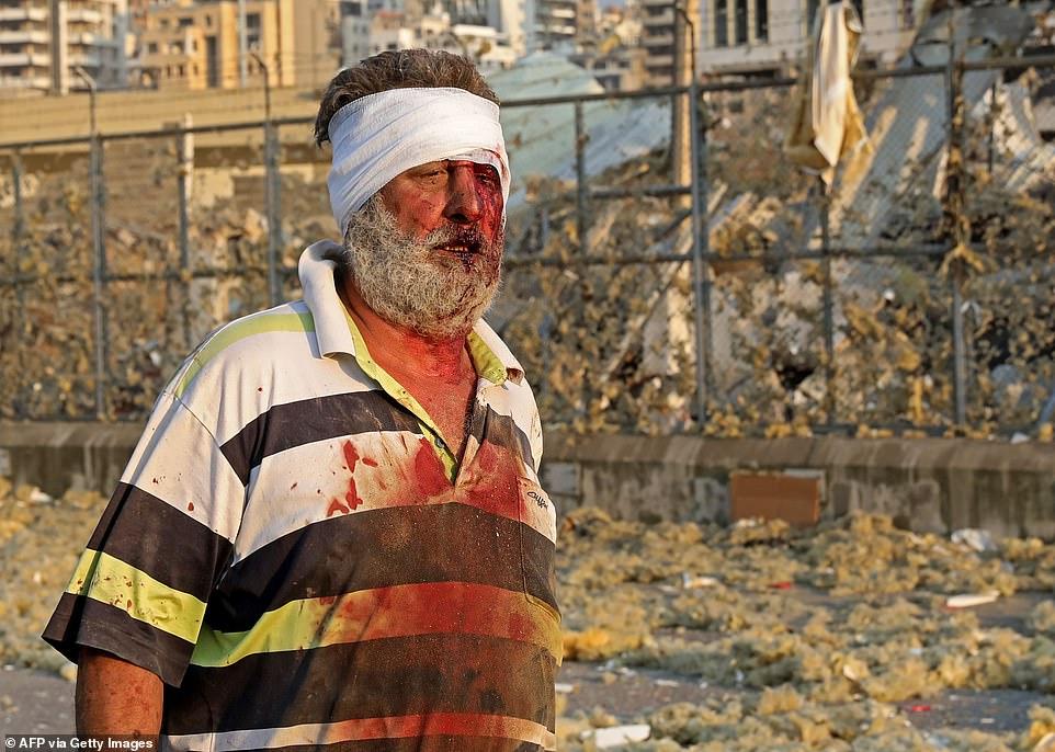 انفجار بیروت (5)