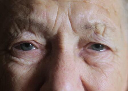 پیر چشمی؛ یکی از شایعترین بیماریها
