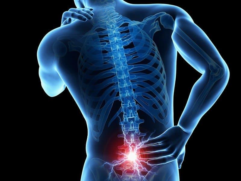 علائم و راه های درمان طبیعی عصب سیاتیک