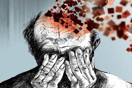 سرگیجه نشانه آلزایمر است؟