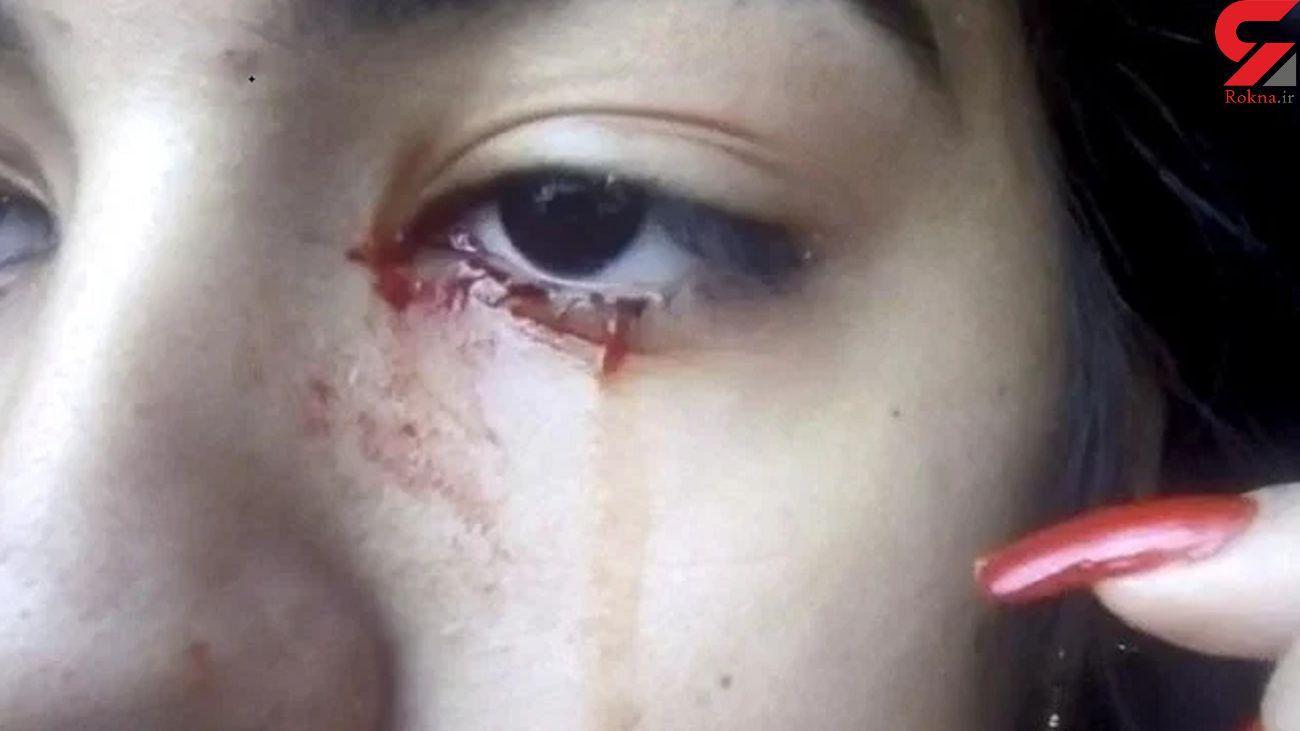 دختری ۱۵ ساله که خون گریه می کند  + عکس