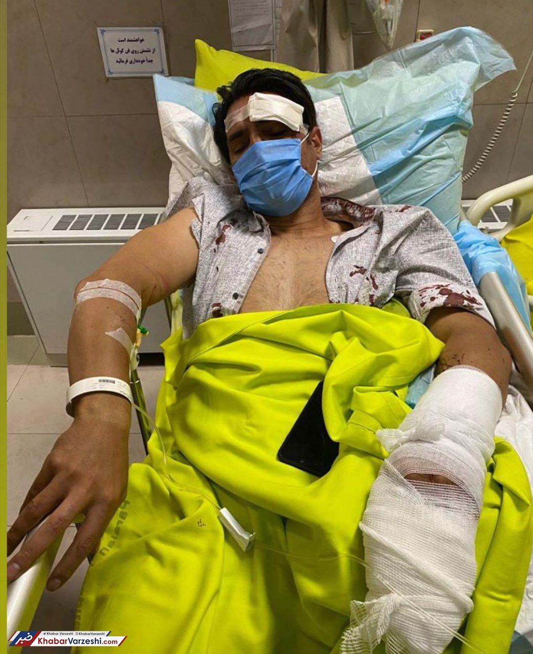 تصاویر| جراحت دلخراش امیرحسین صادقی در تصادف رانندگی