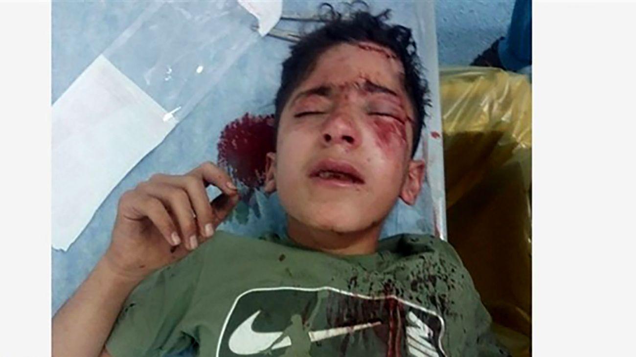 اتفاق وحشتناک برای کولبر ۱۴ ساله و مادر مطلقه اش در مرز پاوه + عکس خون آلود