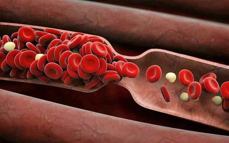 غلظت خون چه خطراتی برای سلامت دارد؟