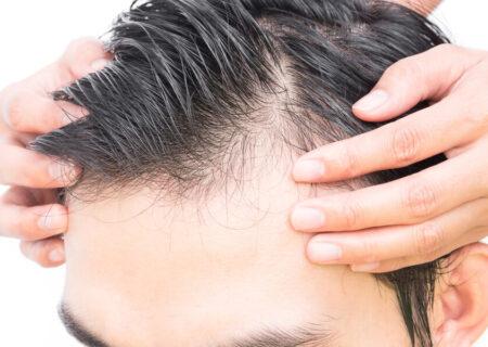 درمان نازک شدن مو با چند روش موثر خانگی