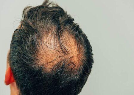 جلوگیری از ریزش موی آقایان
