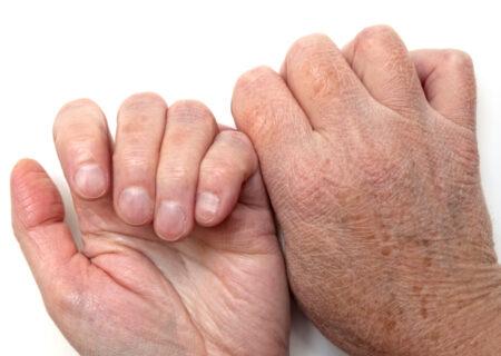 درمان خانگی خشکی پوست و چند نکته مفید برای رفع آن