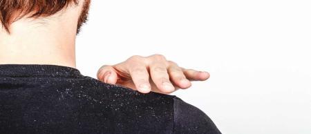 عوارض شوره سر چیست؟