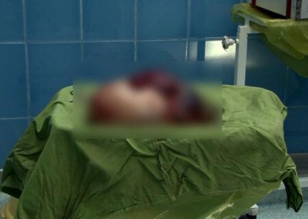 برآمدگی شکم زن ۵۵ ساله همه را شوکه کرد / در بهشهر چه اتفاقی افتاد؟