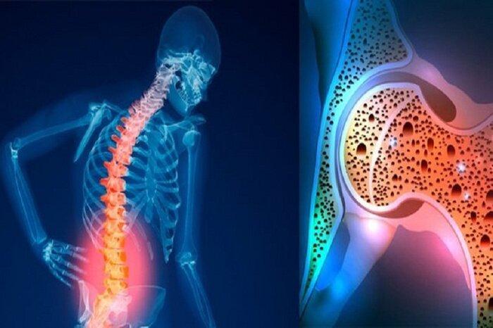 میزان بروز پوکی استخوان بیشتر از سایر بیماریهای غیرواگیر است