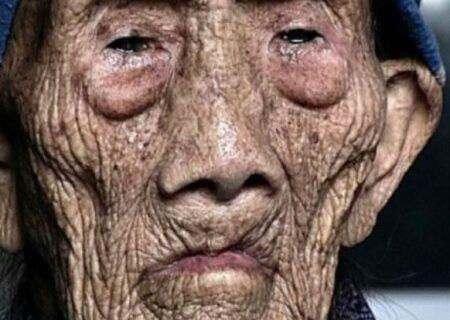 مردی  شبیه کروکودیل شد و مُرد + عکس