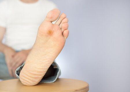"""از هر ۴ بیمار مبتلا به دیابت یک نفر دچار """"زخم پای دیابتی"""" میشود!"""