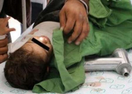 چرخ گوشت دست کودک ۱۹ ماهه شهریاری را بلعید + عکس