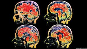 علائم مبتلا به کرونا و عوارض عصبی جدید آن