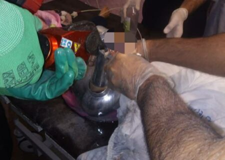 چرخ شدن دست کودک ۴ ساله در خرم آباد + عکس ها