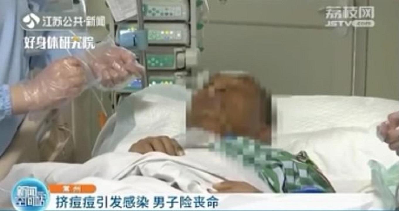 مرد چینی با ترکاندن جوش، تا پای مرگ رفت!