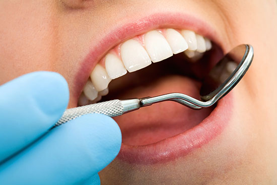 جرم دندان را با راهکارهای خانگی رفع کنید
