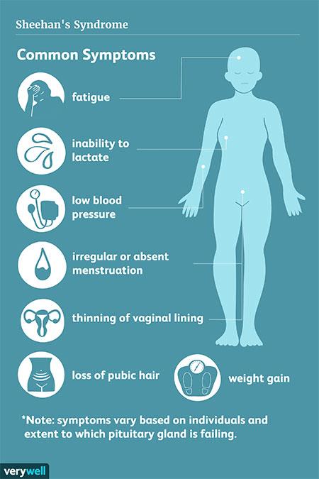 سندرم شیهان، علتها، علائم و درمان