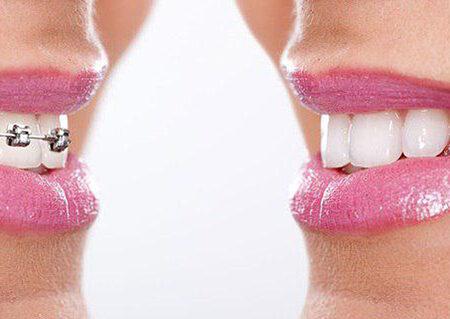 کلینیک تخصصی ارتودنسی – زیبایی