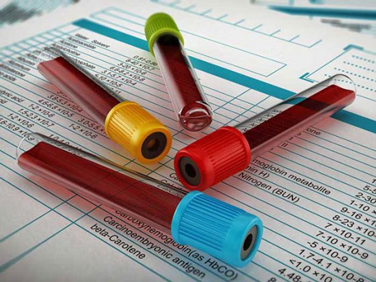 آلرژی مرکبات؛ علائم، روشهای تشخیص و درمان این آلرژی