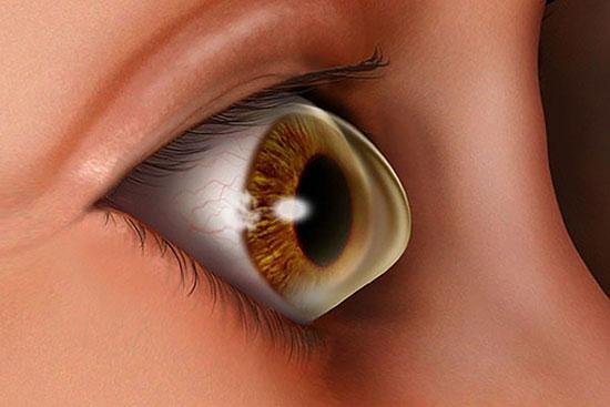 تغییر ناگهانی بینایی در یک چشم