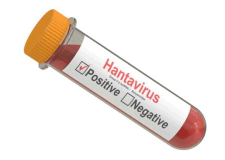 ویروس هانتا چیست و چقدر باید نگران بود؟