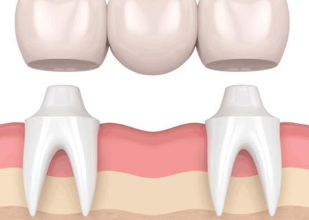 همه چیز راجب بریج دندان