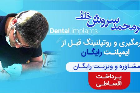 قیمت ایمپلنت دندان سال ۹۹
