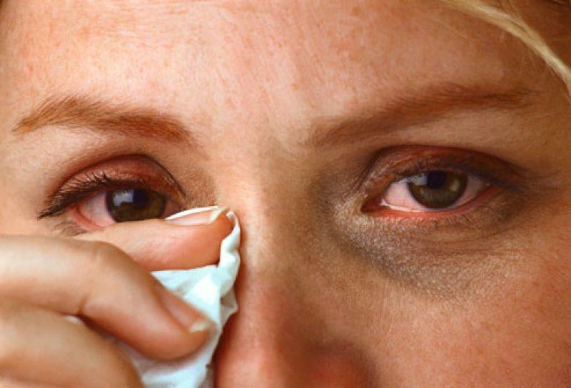 تماس با وایکتس میتواند موجب قرمزی و احساس خارش چشم شود